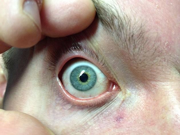 plica semilunaris swollen eye allergies - 630×472